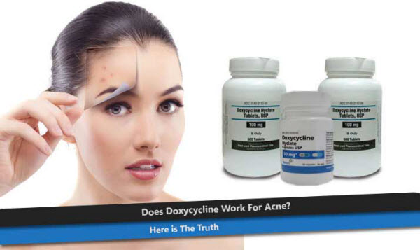 Antibiotic Doxycycline and Acne