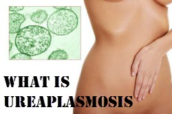 What is ureaplasmosis