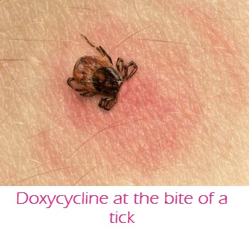 Doxycycline at the bite of a tick
